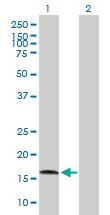 Western blot - AGTRAP antibody (ab89247)