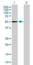 Western blot - MDS028 antibody (ab89249)