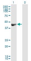 Western blot - OBFC1 antibody (ab89250)