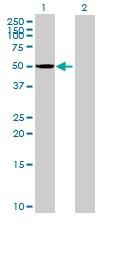 Western blot - CYP3A43 antibody (ab89252)
