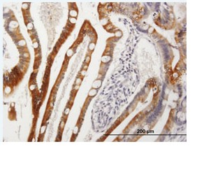Immunohistochemistry (Formalin/PFA-fixed paraffin-embedded sections) - CYP3A43 antibody (ab89252)
