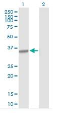 Western blot - Anti-Cyclin H antibody (ab89257)