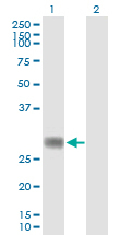 Western blot - RNF144 antibody (ab89260)