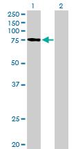 Western blot - PLOD3 antibody (ab89263)