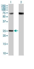 Western blot - RPP40 antibody (ab89264)