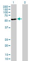 Western blot - UGT2B15 antibody (ab89274)
