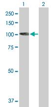Western blot - KIF3C antibody (ab89276)