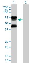 Western blot - RNF25 antibody (ab89281)