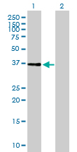 Western blot - ALS2CR1 antibody (ab89282)