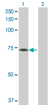 Western blot - GBP5 antibody (ab89284)