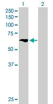 Western blot - TBRG4 antibody (ab89286)