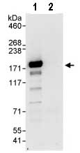 Immunoprecipitation - STIL1 antibody (ab89314)