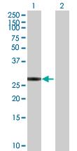 Western blot - SVH antibody (ab89319)