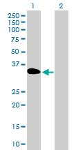 Western blot - DOK3 antibody (ab89327)