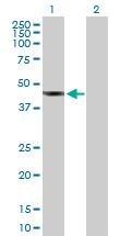Western blot - SDS3 antibody (ab89345)