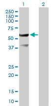 Western blot - ETEA antibody (ab89351)