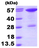 SDS-PAGE - STIP1 protein (His tag) (ab89358)