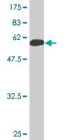 Western blot - 14-3-3 sigma antibody (ab89405)