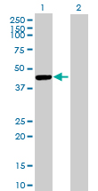 Western blot - Cathepsin E antibody (ab89414)