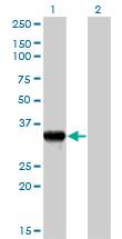Western blot - Granzyme B antibody (ab89415)