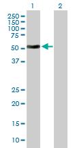 Western blot - ATG4C antibody (ab89417)