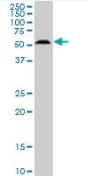 Western blot - AKT3 antibody (ab89430)