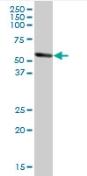 Western blot - ALDH1A1 antibody (ab89431)