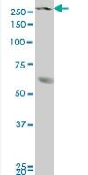 Western blot - KMT3B / NSD1 antibody (ab89432)