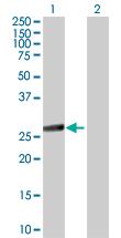 Western blot - IKK beta antibody (ab89434)