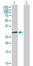Western blot - eIF2B1 antibody (ab89435)