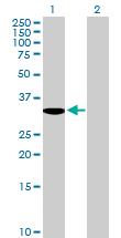 Western blot - MBD3 antibody (ab89440)