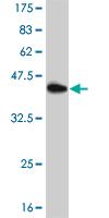 Western blot - Nrf2 antibody (ab89443)