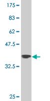 Western blot - Zfp281 antibody (ab89445)