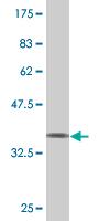 Western blot - Spastin antibody (ab89449)