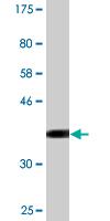 Western blot - Cyclin T2 antibody (ab89450)