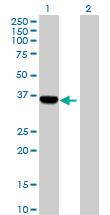 Western blot - C1orf80 antibody (ab89465)