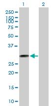 Western blot - THTPA antibody (ab89466)