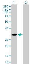 Western blot - SPSB2 antibody (ab89467)