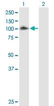 Western blot - EPS8 antibody (ab89477)