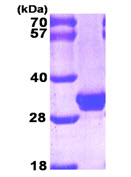 SDS-PAGE - Galectin 3 protein (His tag) (ab89487)