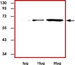 Western blot - PKC zeta antibody (ab89490)