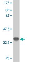 Western blot - VEGF Receptor 3 antibody (ab89501)