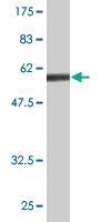 Western blot - EMAP II antibody [n/a] (ab89506)