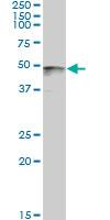 Western blot - PAX8 antibody (ab89508)