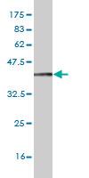Western blot - TLR7 antibody [n/a] (ab89509)