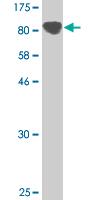 Western blot - PCDHGC3 antibody (ab89520)