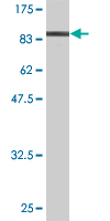 Western blot - IMP3 antibody (ab89521)