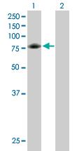 Western blot - GARS antibody (ab89522)
