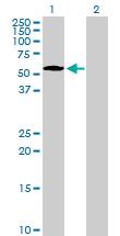 Western blot - NUP50 antibody (ab89524)