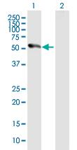 Western blot - PRAK antibody (ab89525)